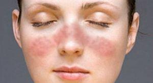 Giornata mondiale contro il Lupus